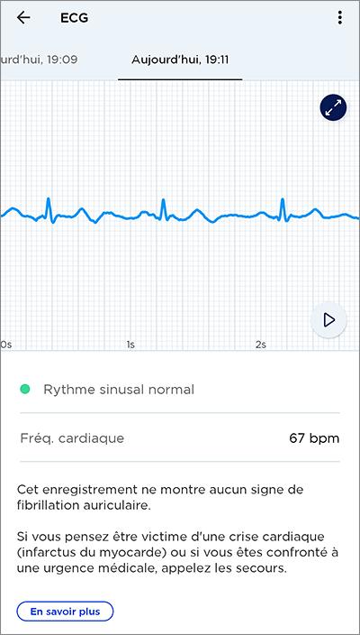 Résultats de l'ECG